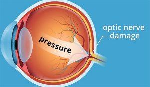tratamento do glaucoma em passo fundo