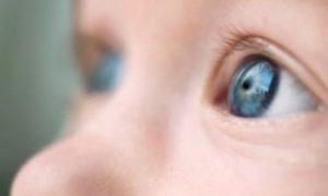 Catarata congenita clínica de oftalmologia em Passo Fundo