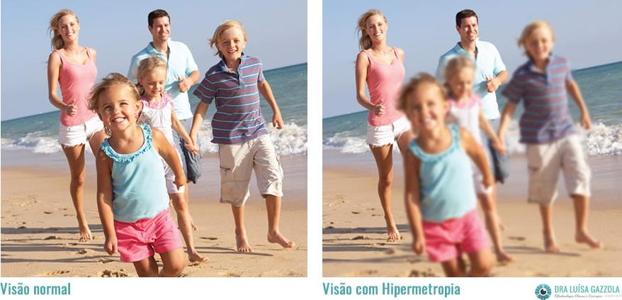hipermetropia na infância